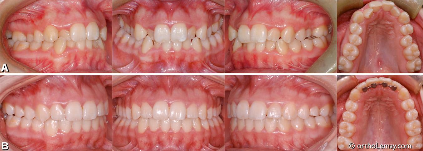 malocclusion classe 1, occlusion croisée postérieure bilatérale, chevauchement dentaire. Traitement d'orthodontie adolescent. Orthodontiste Lemay