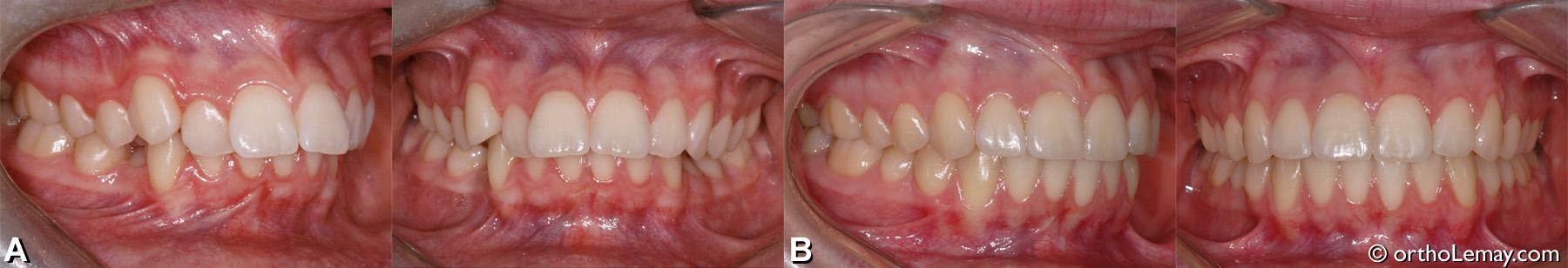 malocclusion dentaire classe 1 avec overbite et overjet excessifs. Traitement d'orthodontie adolescent