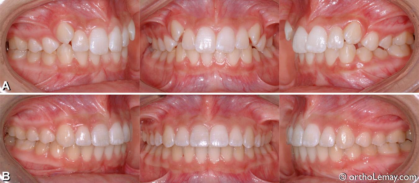 Correctiond'une malocclusion classe 2 chez une adolescente en orthodontie
