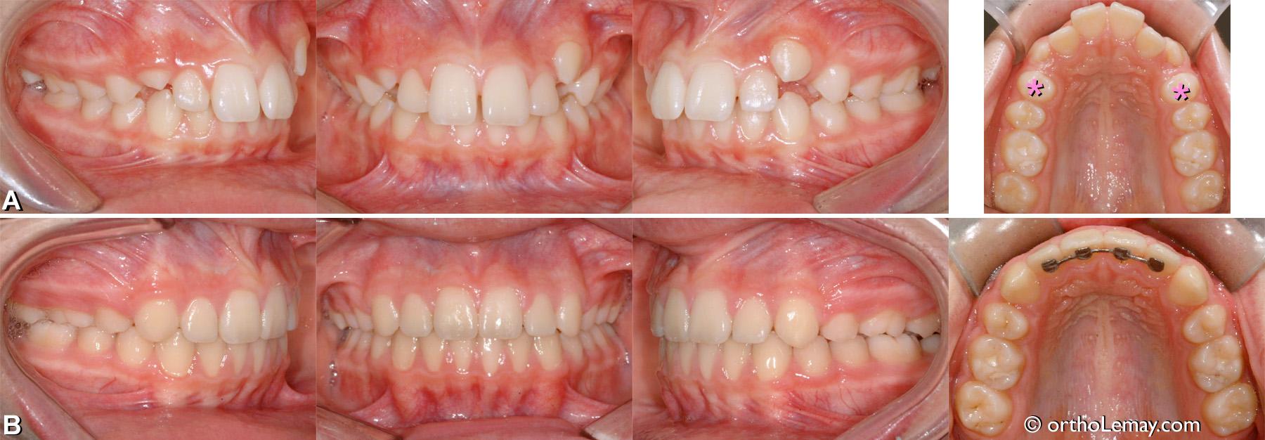 Malocclusion classe 2 division 1 traitée en orthodontie avec l'extraction de 2 prémolaires.