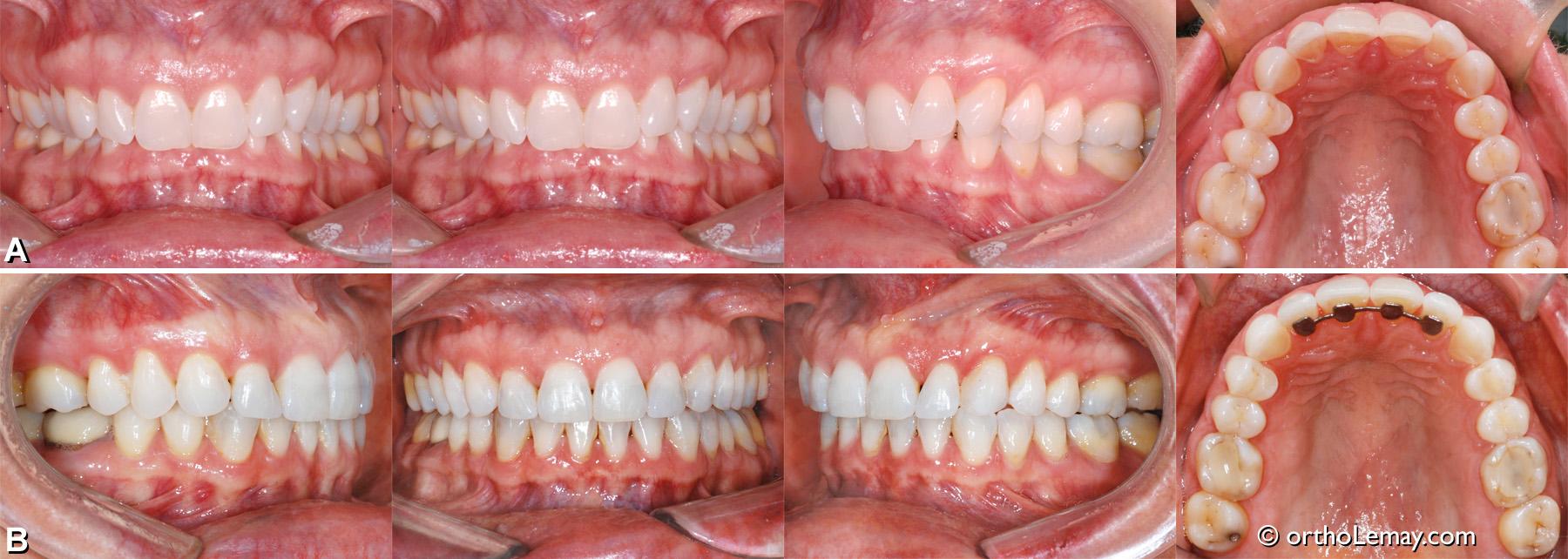 Sévère malocclusion dentaire classe II division 2 avec overbite à 100 % et incisives basculées vers l'intérieur. Traitement d'orthodontie sans extractions ou chirurgie