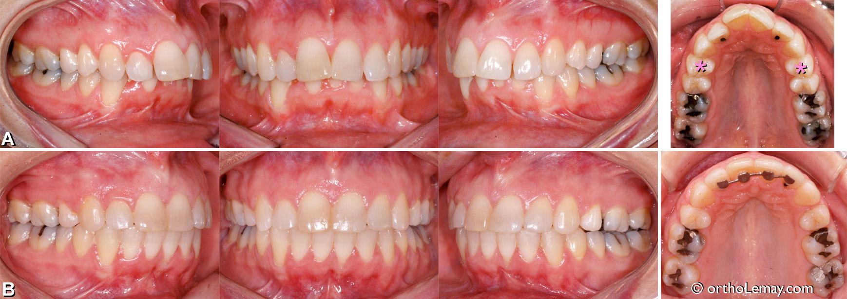 Sévère malocclusion dentaire classe 2 division 1 traitée avec des extractions chez une adulte.