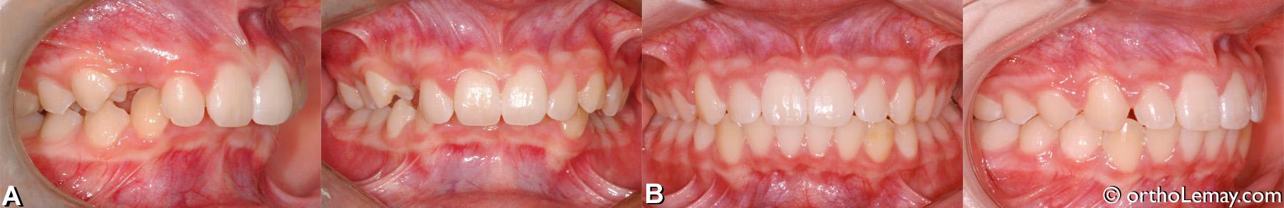 malocclusion classe 2 division 1 avec overbite et overjet excessifs traitée en orthodontie. Adolescent.