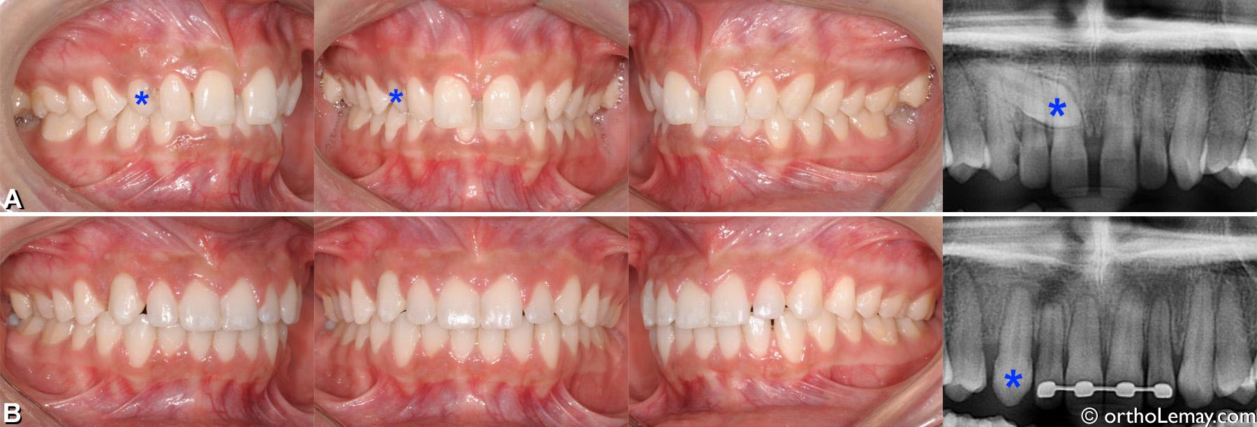 Malocclusion classe 2 division 2 adulte avec canine incluse palatine. Traitement d'orthodontie pour tracter la canine et corriger la malocclusion