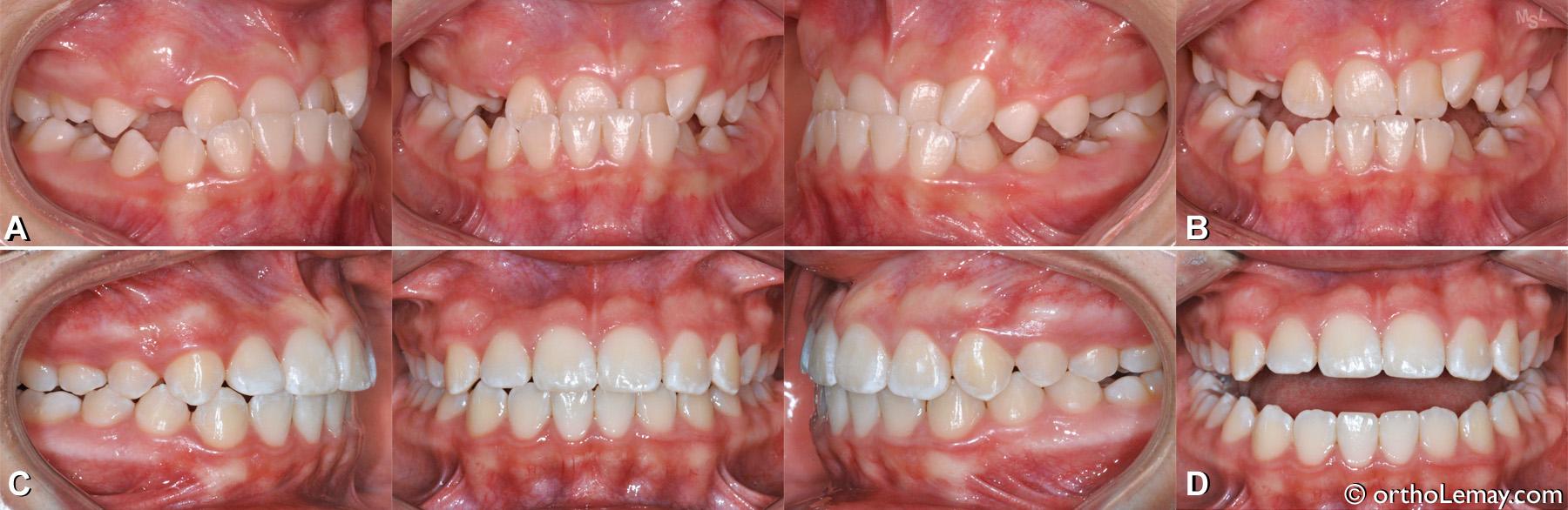 Malocclusion dentaire classe 3 avec occlusion croisée antérieure et glissement fonctionnel. (Funtional shift)