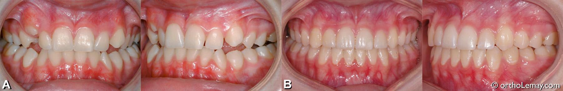 malocclusion dentaire classe 1 béance postérieure, guidance canine inadéquate, arcade étroite.