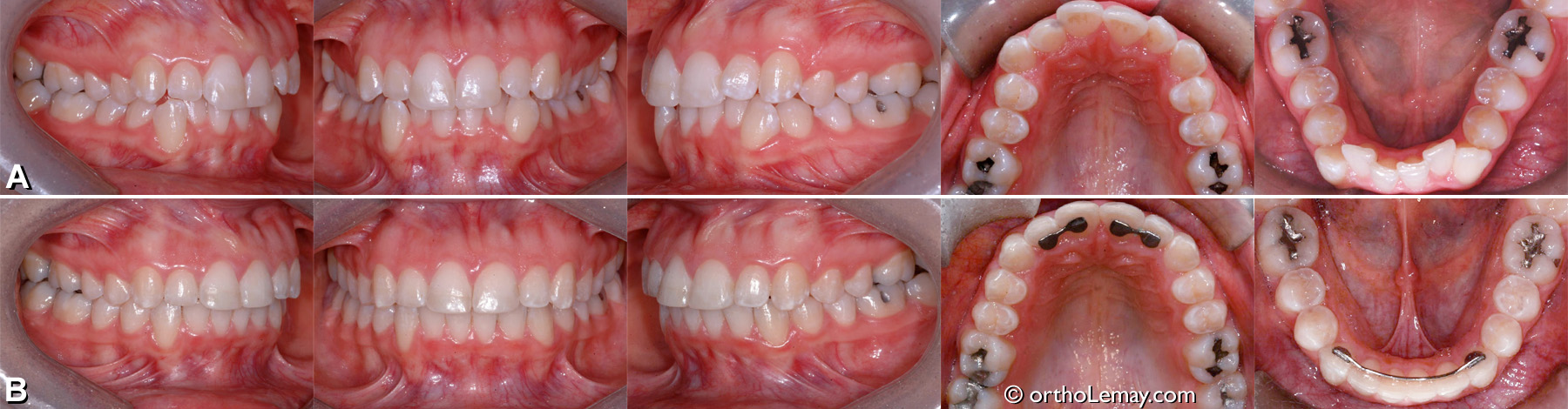 malocclusion dentaire classe 1 , dental crowding, encombrement dentaire, orthodontie Sherbrooke