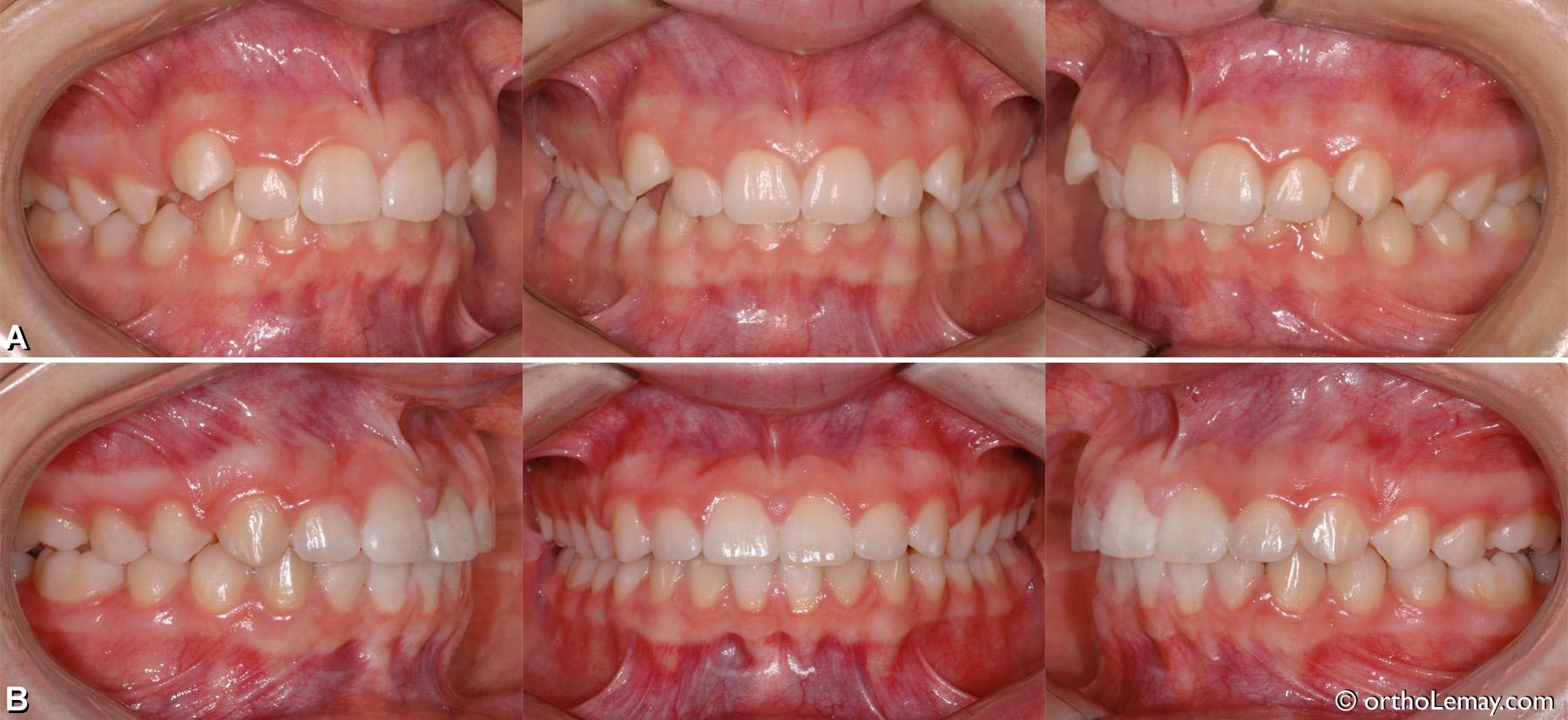 malocclusion classe 1 dentaire, overbite, surplomb excessif, ligne médiane déviée, chevauchement dentaire.
