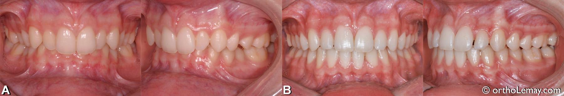 Malocclusion dentaire classe 2, supraclusion, overbite excessif, latérales étroites.
