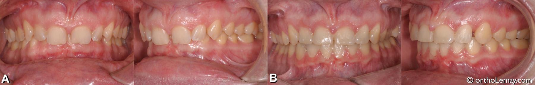 Malocclusion dentaire classe 2 division 2 adulte avec usure dentaire et overbite 100% de surplomb vertical.