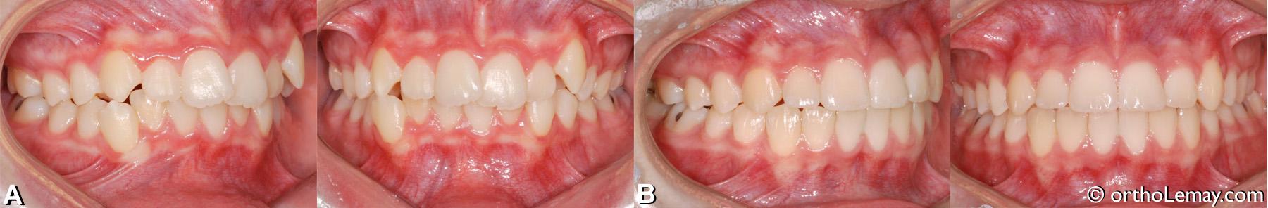Correction en orthodontie d'une malocclusion dentaire classe 2 (II) avec chevauchement dentaire et déviation les lignes médianes chez un adolescent.