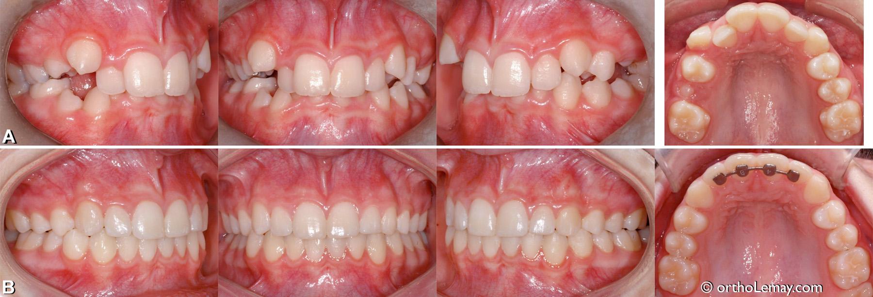Malocclusion dentaire classe 2, chevauchement dentaire, supraclusion antérieure.