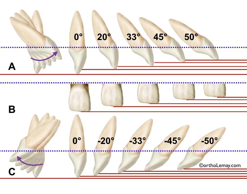 Effet de l'inclinaison labiale et linguale sur la longueur apparente de la couronne d'une incisive supérieure et l'overbite et overjet.