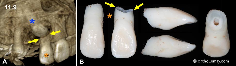 Résorption radiculaire causée par une caine ectopique incluse palatine.
