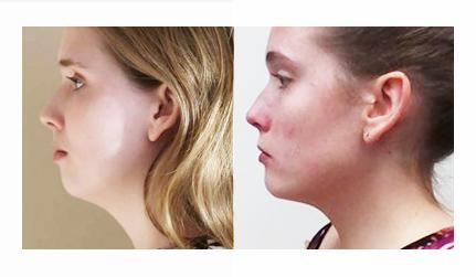 Chirurgie orthognathique avancement mandibulaire et amélioration du profil du visage. ortho-chirurgie
