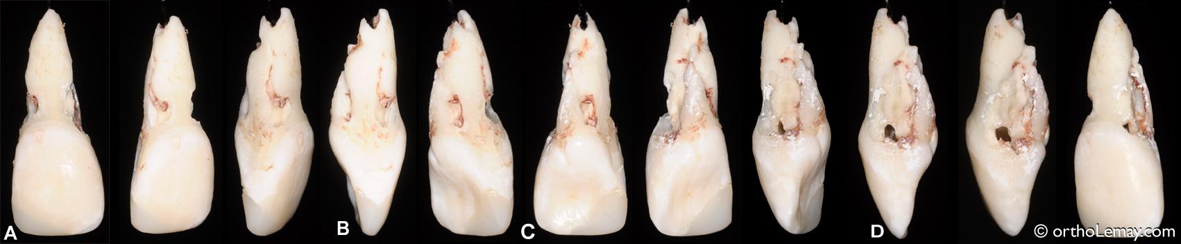 Photos montrant les différentes surfaces de l'incisive centrale droite sévèrement affectée par de la rhizalyse ou résorption radiculaire.