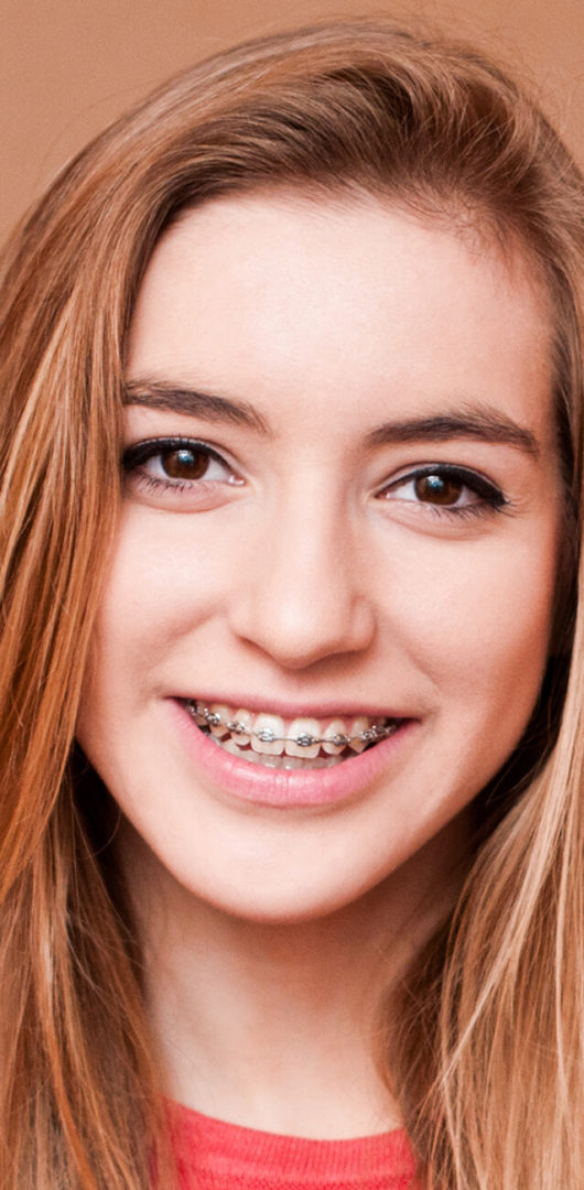 orthodontie enfants et adolescents